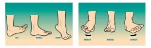 piede normale o equino; piede pronato o supinato