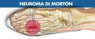 Neuroma di Morton: sintomi, cause e cura
