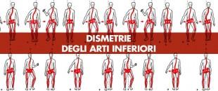 Dismetrie degli arti inferiori