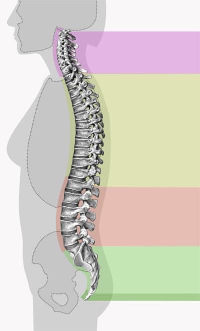 Curvature della colonna vertebrale