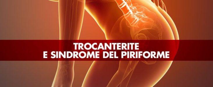 Trocanterite e sindrome del piriforme