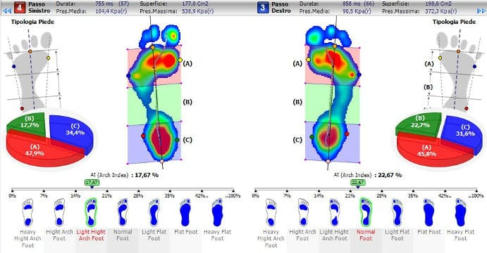 Valutazione podologica e posturale: esame comprensivo di esame baropodometrico in statica e dinamica con analisi del cammino