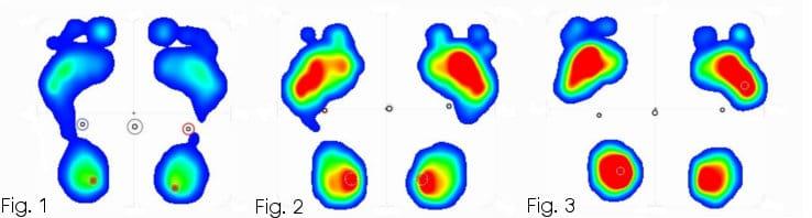 Esame baropodometrico di piede cavo di primo grado, secondo grado e terzo grado