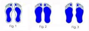 Esame baropodometrico di piede piatto di primo grado, secondo grado e terzo grado