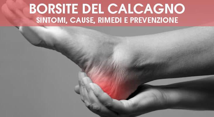 Borsite del calcagno (retrocalcaneare): sintomi, cause, rimedi e prevenzione