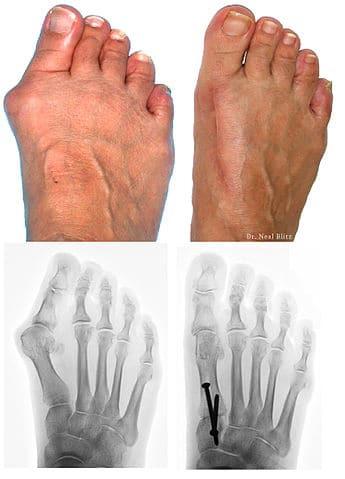 Cura dell'alluce valgo - foto del piede confrontata con radiografia, prima e dopo intervento