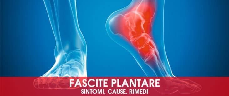 Fascite plantare: sintomi, cause, rimedi