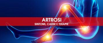 Artrosi: sintomi, cause e terapie