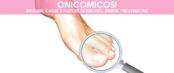 Onicomicosi: sintomi, cause, rimedi, prevenzione