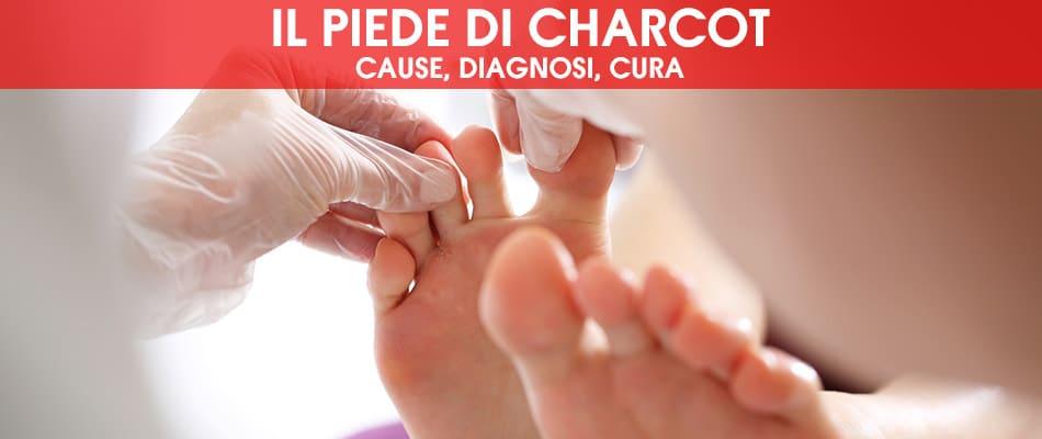 Piede di Charcot: cause, diagnosi, cura